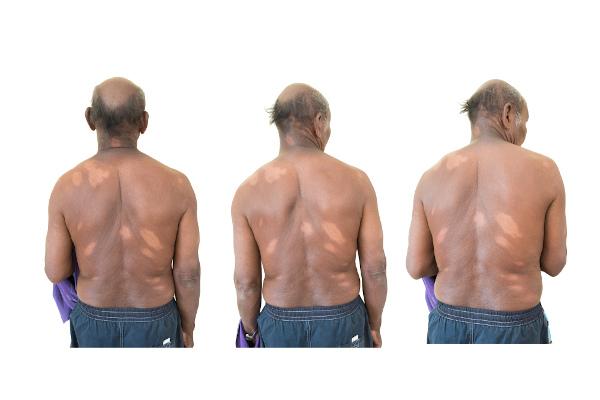 A hanseníase leva a manchas na pele com alteração na sensibilidade.