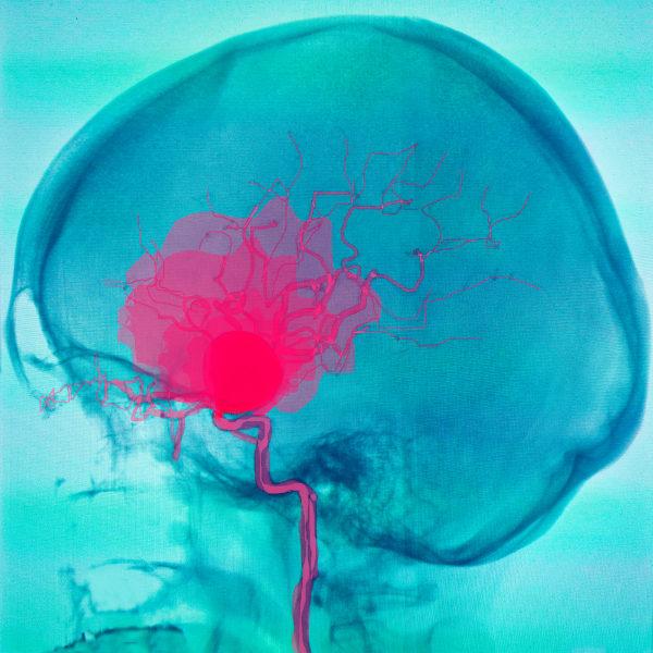 O rompimento de um aneurisma pode provocar consequências graves.