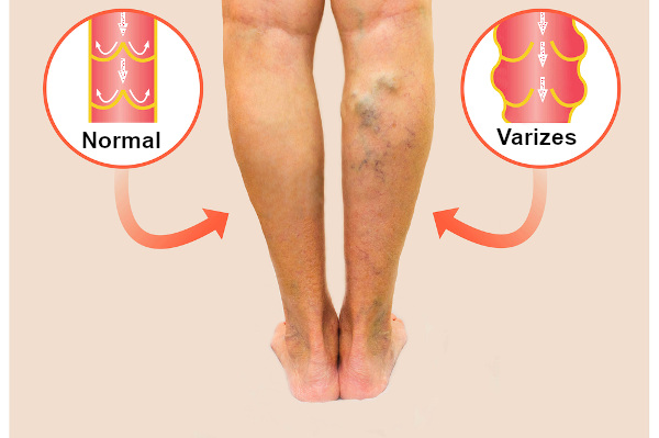 As veias varicosas têm um aspecto tortuoso.