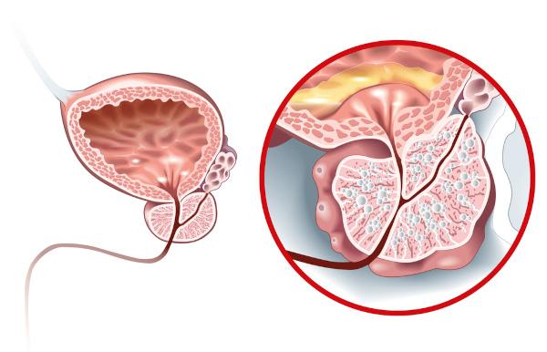 O aumento da próstata pode comprimir a uretra, provocando problemas ao urinar.