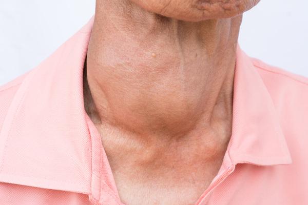 O bócio é o aumento do volume da glândula tireoide e pode ocorrer em casos de hipotireoidismo e hipertireoidismo.