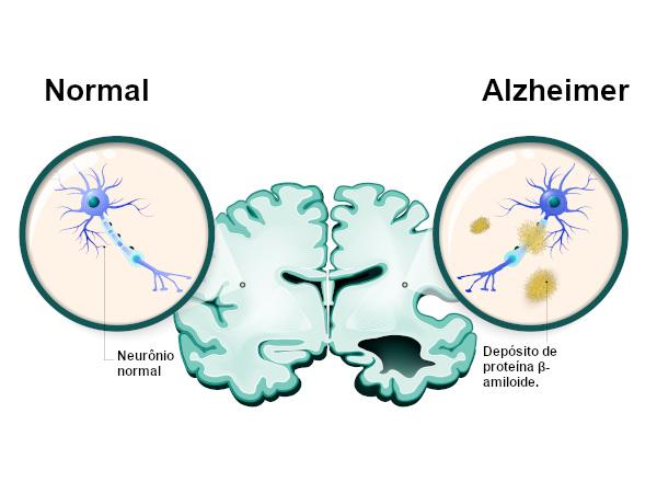 No Alzheimer, observa-se uma série de alterações cerebrais, incluindo o acúmulo de placas senis decorrentes do depósito da proteína β-amiloide.