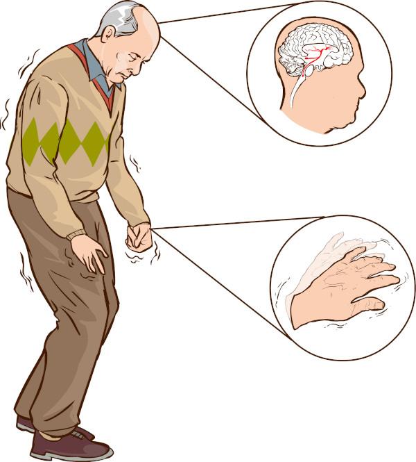 A doença de Parkinson atinge o sistema nervoso central, provocando, principalmente, sintomas motores.