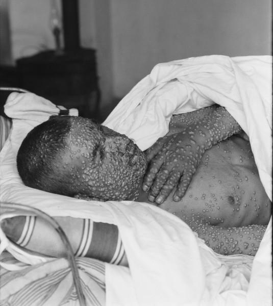 A varíola provoca lesões na pele e pode levar à morte.