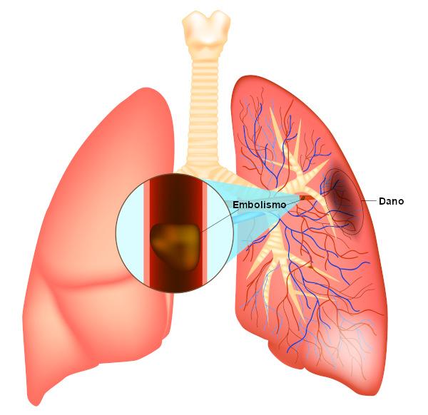 Na embolia pulmonar, observa-se a presença de trombos.