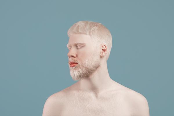 O albinismo é uma desordem genética que se caracteriza pela redução ou ausência de melanina.