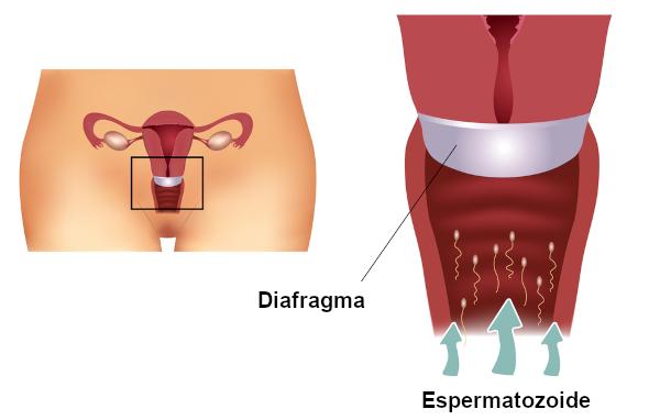 Esquema ilustrativo sobre o método de barreira do diafragma no útero da mulher