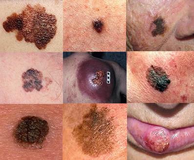 Os melanomas podem aparecer em regiões do corpo que ficam ou não expostas ao sol