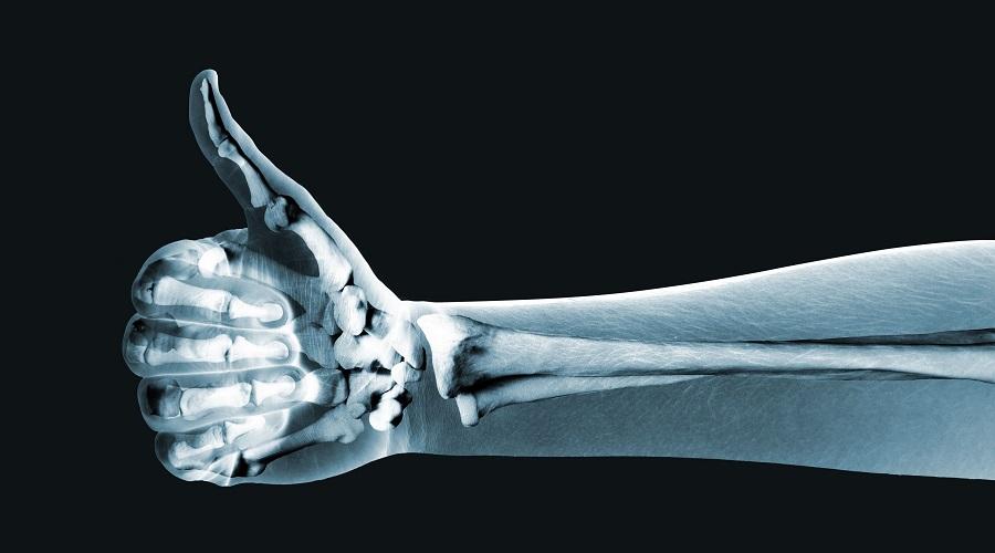 Os raios X têm muitos usos, e um dos mais populares é o exame de imagem que permite visualizar os nossos ossos.