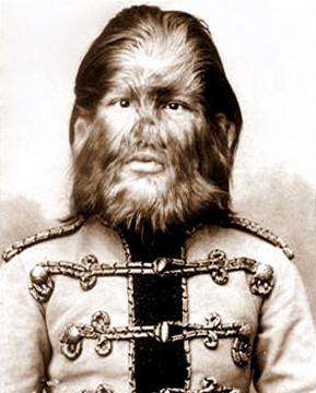 Jojo, conhecido como o Garoto com Cara de Cachorro, era um rapaz russo que possuía hipertricose. (Foto: Charles Eisenmann)