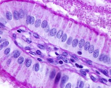O epitélio acima é simples — apresenta apenas uma camada de células — e prismático