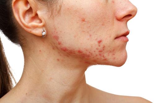 A acne caracteriza-se pela formação de lesões típicas na pele