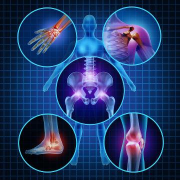 A artrite reumatoide é uma doença que afeta as articulações