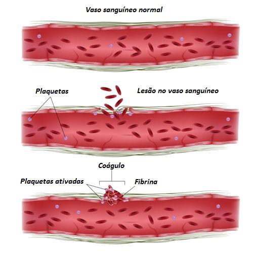 A coagulação pode evitar uma grande perda de sangue após uma lesão