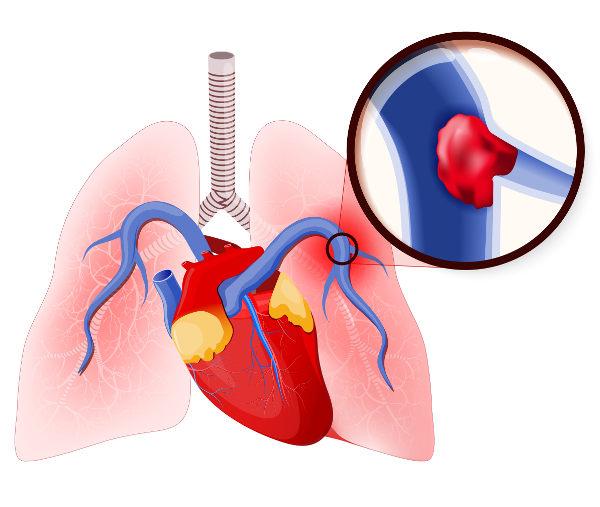 A embolia pulmonar acontece por causa da oclusão da artéria pulmonar ou de seus ramos.