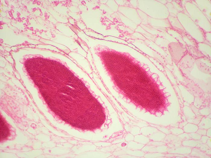 A figura acima mostra o anterídio de uma hepática em um aumento de 200x