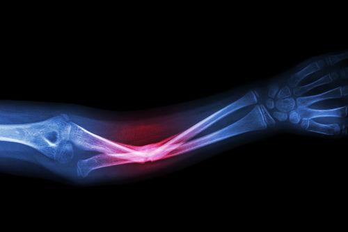 A fratura pode ser definida como uma interrupção da continuidade do osso