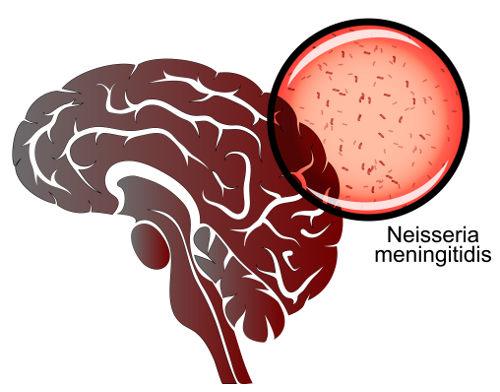 A <i>Neisseria meningitidis</i> é uma bactéria que causa meningite