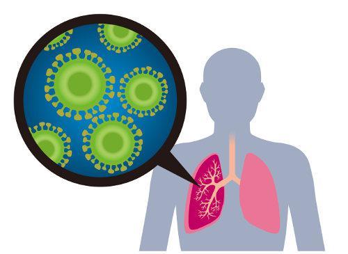 A Mers provoca febre, tosse e dificuldade respiratória