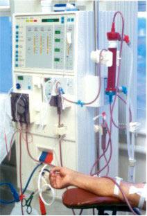 A osmose é usada na medicina no processo de hemodiálise