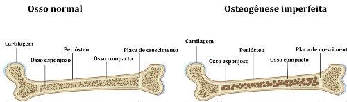 A osteogênese imperfeita torna os ossos mais frágeis quando comparados a um osso normal