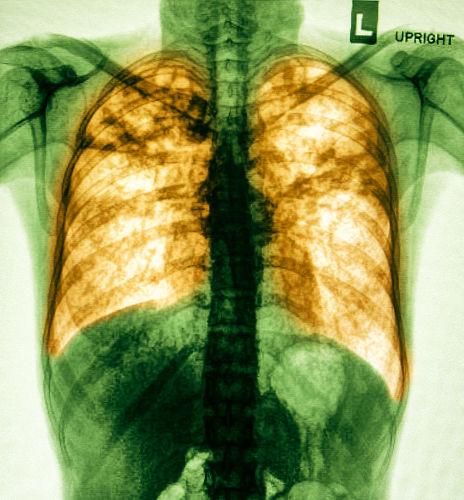 A pneumonia pode ser causada por diferentes agentes, tais como vírus e bactérias