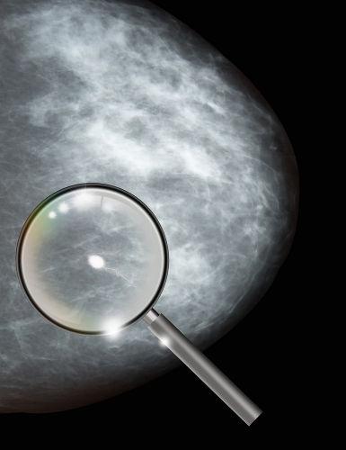 A presença de um tumor sempre indica que uma pessoa está com câncer?