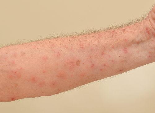 A sarna é uma doença que causa muita coceira