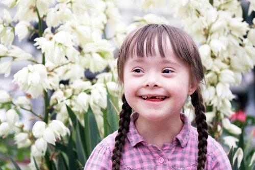 A síndrome de Down é ocasionada pela presença de um cromossomo 21 extra