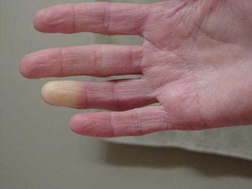 Algumas pessoas podem apresentar palidez nos dedos em decorrência do fenômeno de Raynaud