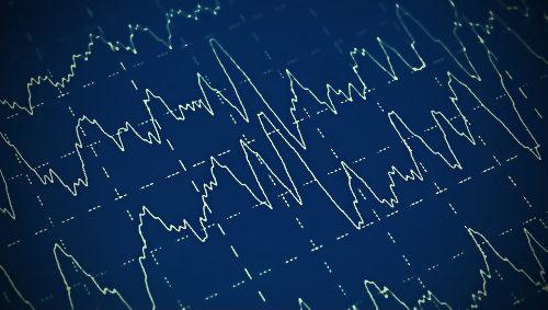 As convulsões são ocasionadas por descargas elétricas anormais no cérebro