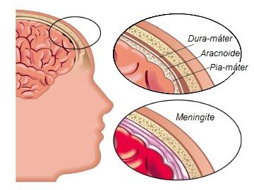 As meninges são membranas que envolvem o sistema nervoso central. Sua inflamação causa a meningite *