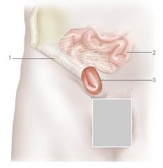 A hérnia inguinal caracteriza-se pela protrusão de um órgão na região da virilha. 1- ligamento inguinal; 2- intestino; 3-hérnia. *