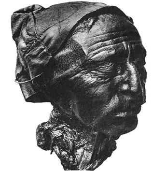 Cabeça do Homem de Tollund. É possível perceber que permaneceu extremamente conservada por séculos