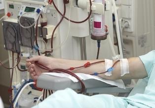 Em estágios avançados da insuficiência renal crônica, o tratamento com hemodiálise pode ser necessário