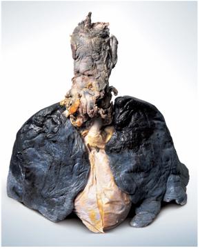Fumar causa câncer de pulmão