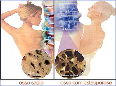 Na figura podemos observar um osso sadio, de uma pessoa jovem, à esquerda; e um osso com osteoporose, de uma pessoa de idade mais avançada, à direita