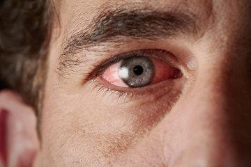 A dor nos olhos pode indicar problemas graves de saúde