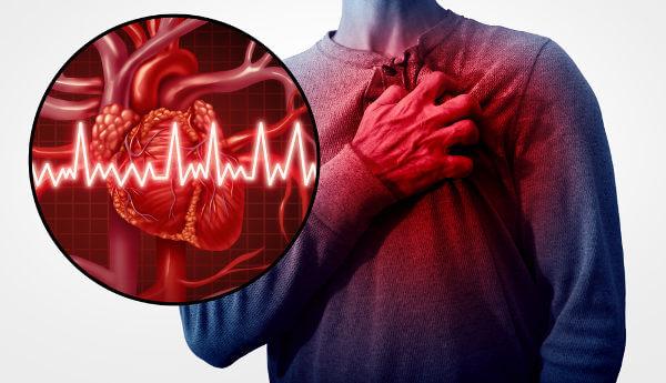 Problemas cardiovasculares estão entre as principais causas de morte no mundo.
