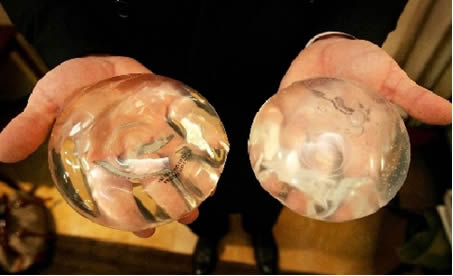 Próteses de silicone usadas em cirúrgias plásticas.