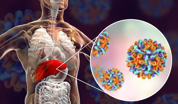 A hepatite B é uma doença causada por vírus que desencadeia inflamação no fígado.