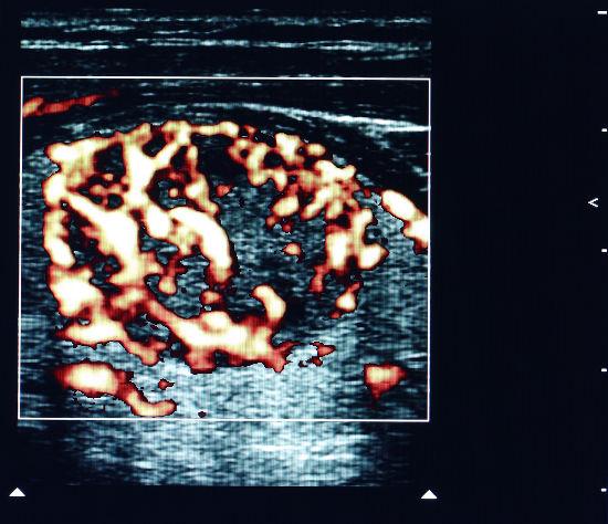 Imagem de um tumor na glândula tireoide obtida em exame que utiliza o efeito Doppler