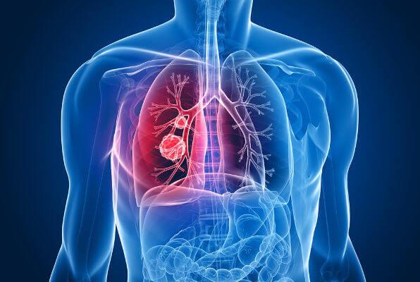 O câncer de pulmão é um exemplo de neoplasia maligna.