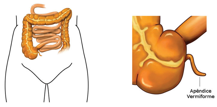 O apêndice vermiforme é um exemplo de órgão vestigial