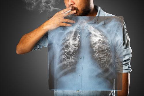 O câncer de pulmão, que apresenta relação direta com o cigarro, é muito agressivo e pode matar