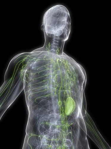 O câncer que acomete o sistema linfático é denominado de linfoma