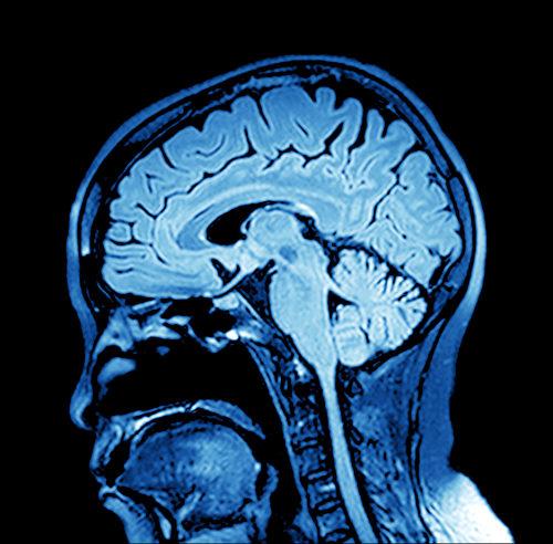 O cérebro é uma região do Sistema Nervoso Central localizada no interior da caixa craniana