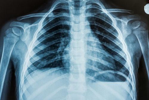 O choque dos raios X com o corpo gera imagens que auxiliam no diagnóstico de problemas de saúde