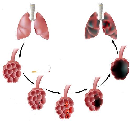 O enfisema pulmonar caracteriza-se pela destruição do tecido pulmonar
