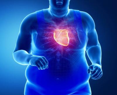 O excesso de peso faz com que o coração trabalhe mais